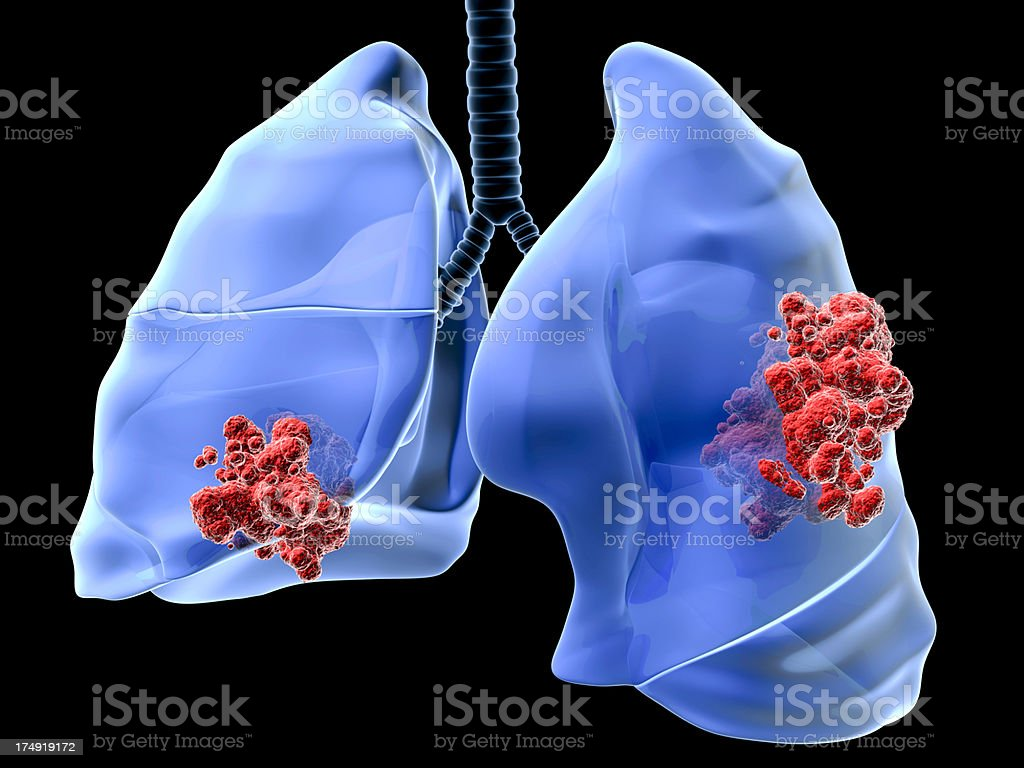 Lung cancer royalty-free stock photo
