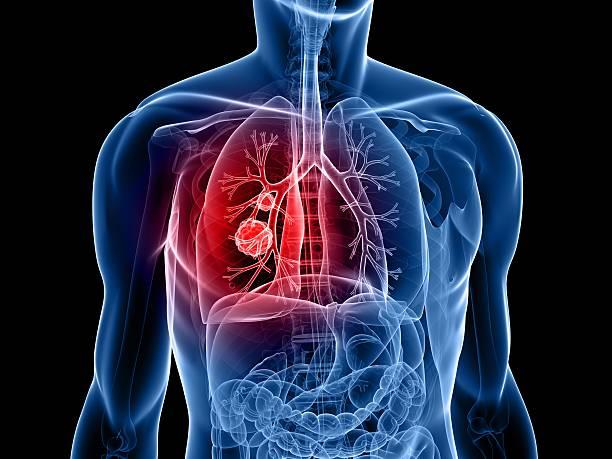 lung cancer - krebs tumor stock-fotos und bilder
