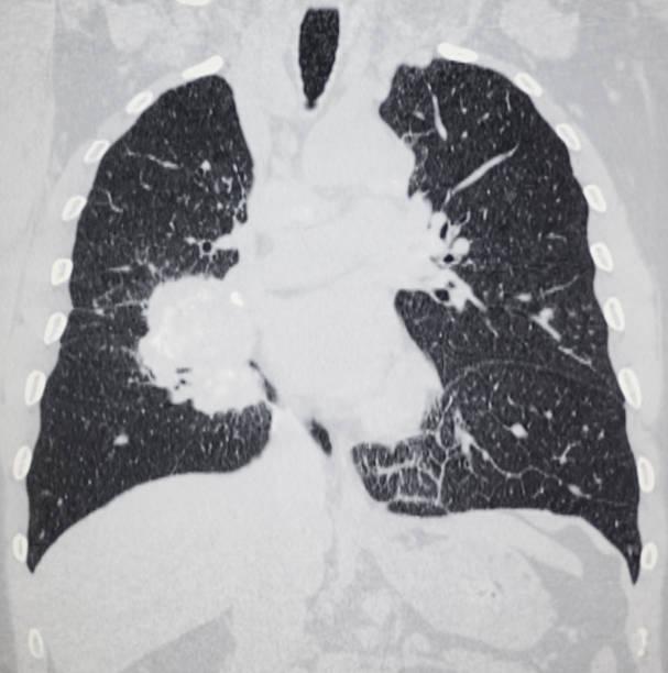 Lungenkrebs thorax CT Bild – Foto