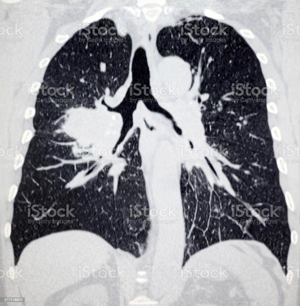 Lungenkrebs Thorax Ct Bild Stock-Fotografie und mehr Bilder von ...