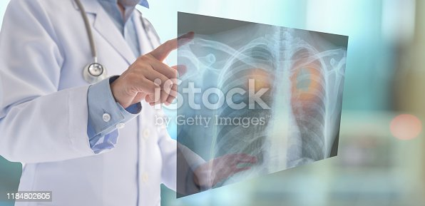836113342 istock photo lung cancer x-ray 1184802605