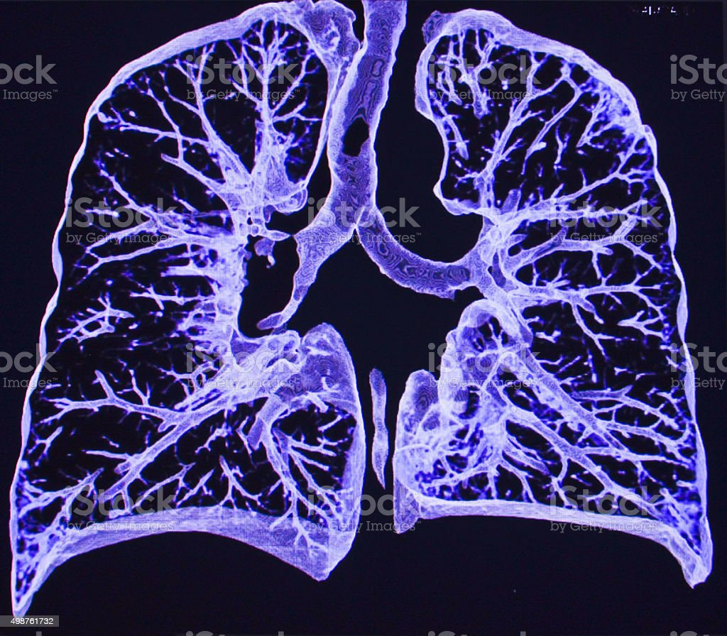 lung CT stock photo