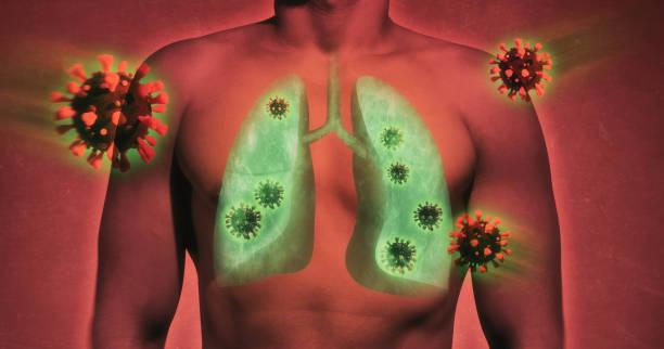 Lung damage by coronavirus covid-19 stock photo