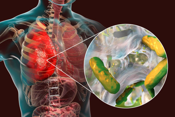 Lung infection caused by bacteria Pseudomonas aeruginosa Lung infection caused by bacteria Pseudomonas aeruginosa, 3D illustration. Nosocomial pneumonia. Pneumonia in immunocompromised patients, in persons with cystic fibrosis, mucoviscidosis alveolus stock pictures, royalty-free photos & images