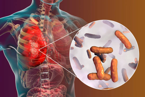 Lung infection caused by bacteria Pseudomonas aeruginosa stock photo