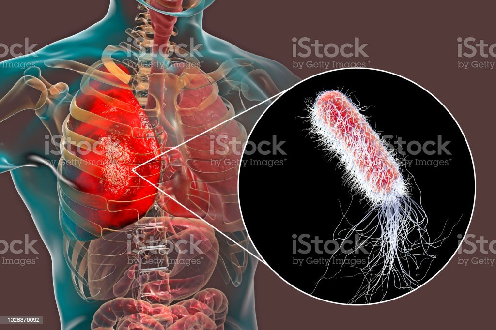 es contagiosa la bacteria pseudomona