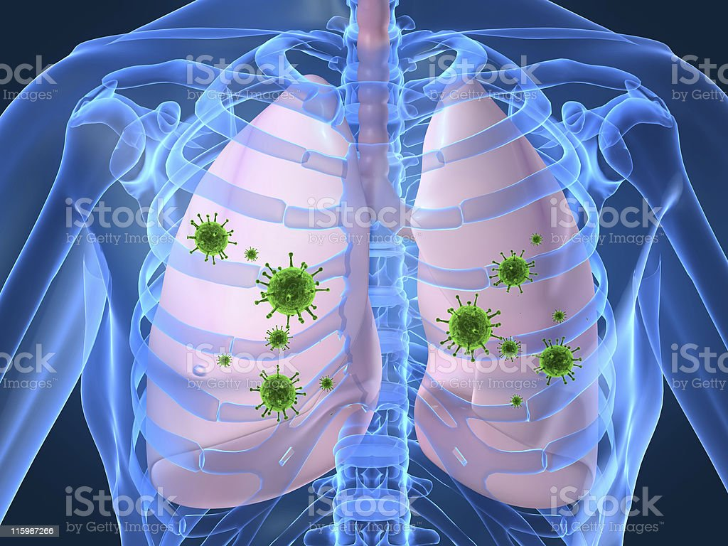 lung infection royalty-free stock photo