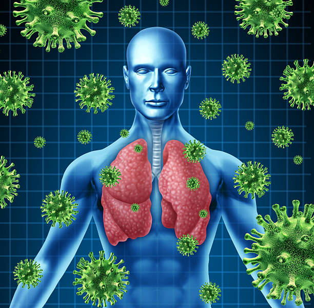 Lung infection Lung infection represented by a human with x-ray image of the lungs and body with virus cells attacking the patient to a state of dangerous respiratory illness. respiratory disease stock pictures, royalty-free photos & images
