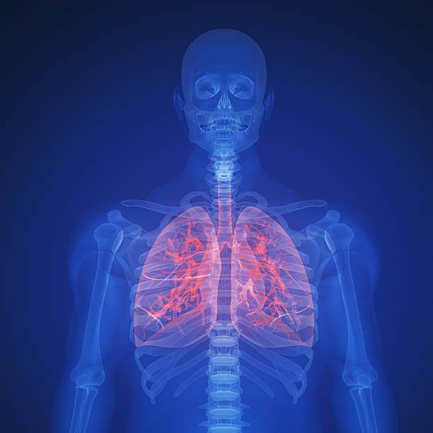 lung infection infection of an human lung.Please see some similar pictures from my portfolio: respiratory disease stock pictures, royalty-free photos & images