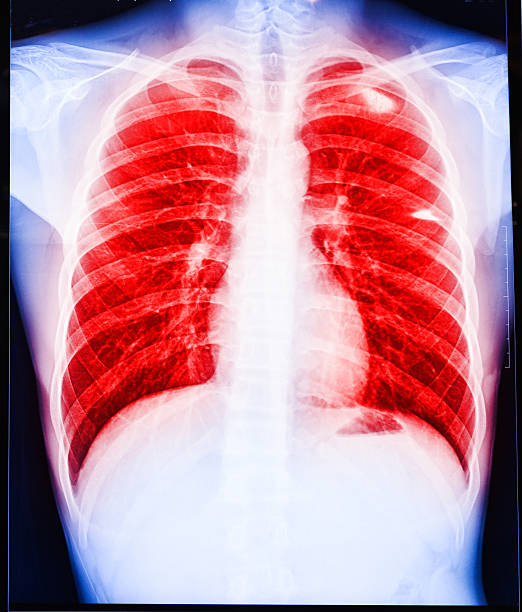 lung infection Digital medical illustration: infection of an human lung. respiratory disease stock pictures, royalty-free photos & images