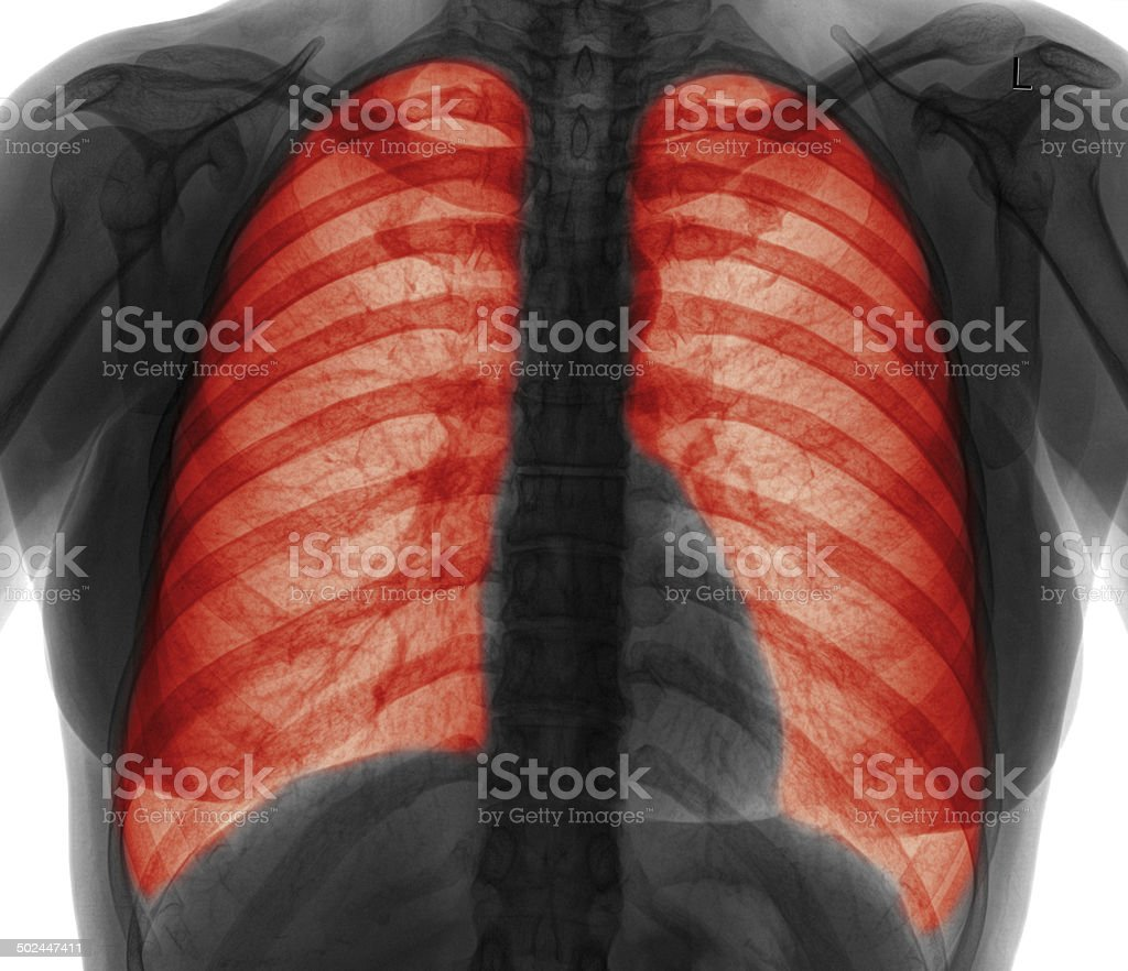 Lung infection-B&W stock photo