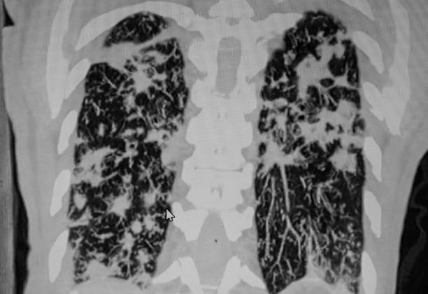 Lung multiple sites of infection, CAT Scan Lung multiple sites of infection, CAT Scan respiratory disease stock pictures, royalty-free photos & images