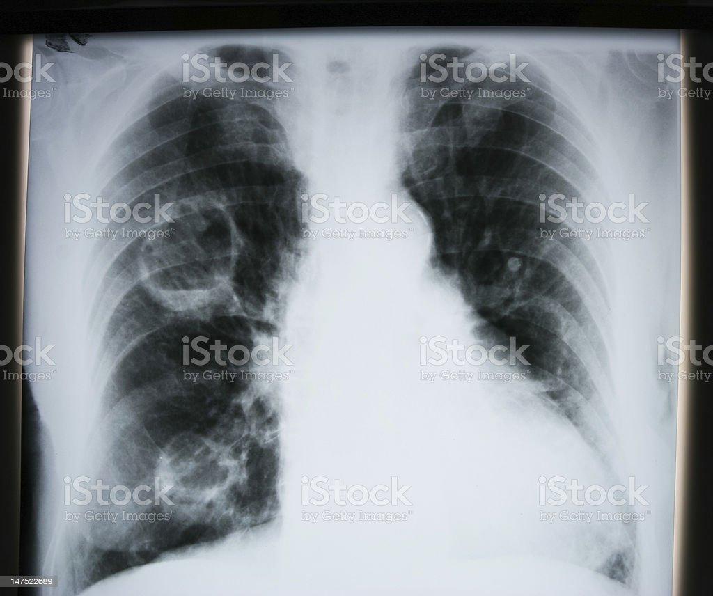 Lunge Röntgen Stock-Fotografie und mehr Bilder von Anatomie | iStock
