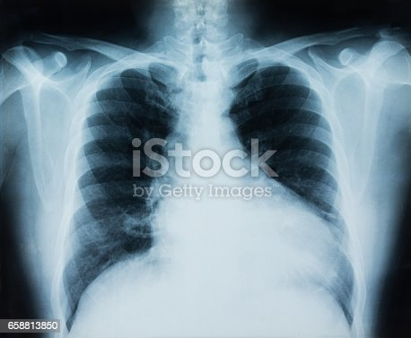 istock lung x-ray 658813850