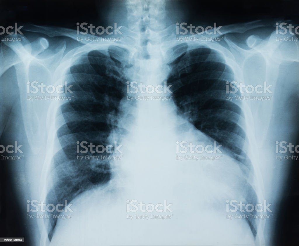 lung x-ray stock photo