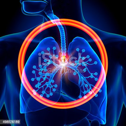 istock Lungs Foreign Object - inhaled 498526189