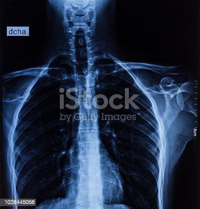 istock Lungs X ray 1028445058