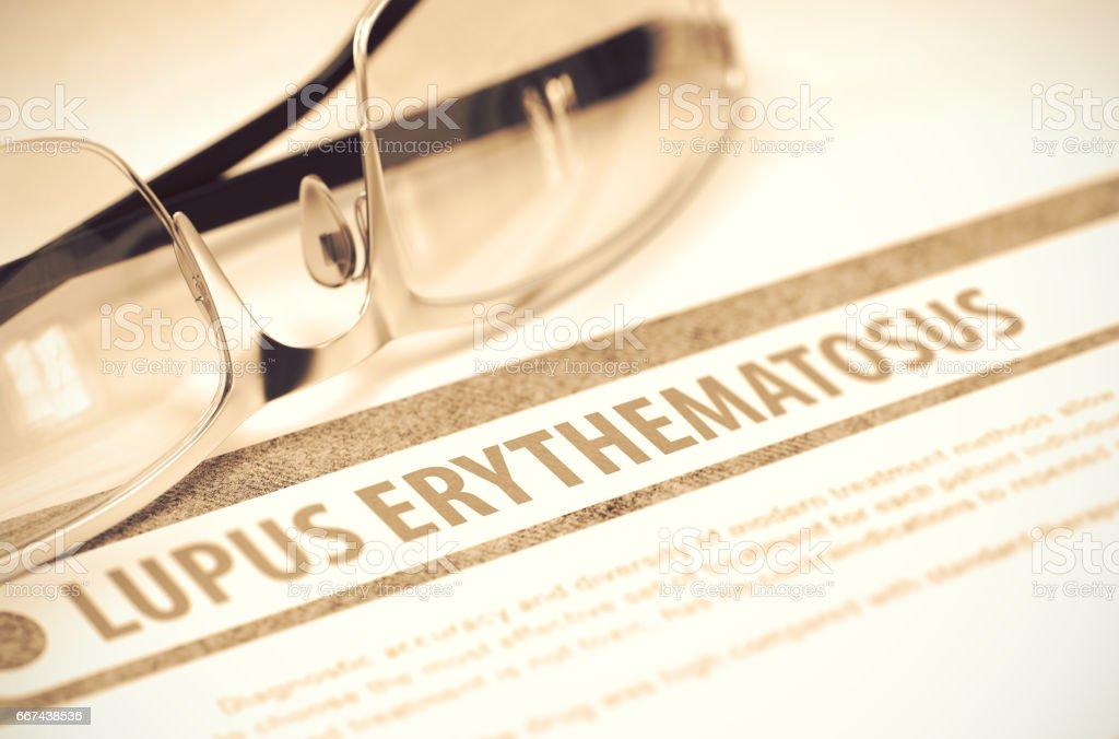 Lupus erythematodes. Medizin. 3D Illustration – Foto