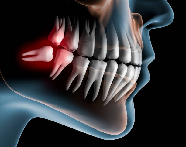 Lying Wisdom Tooth in the Lower Jaw - 3D Rendering Liegender Weisheitszahn im Unterkiefer vor dunklem Hintergund  - 3D Illustration teeth stock pictures, royalty-free photos & images
