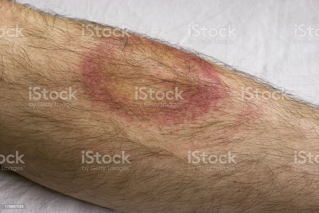 Lyme disease Borreliosis after a tick bite. Adult Stock Photo