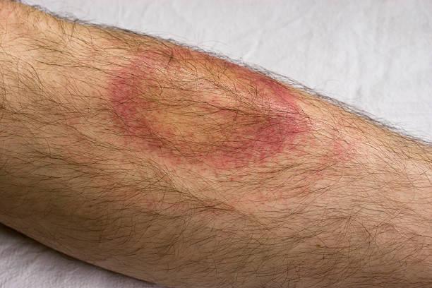 Lyme disease stock photo