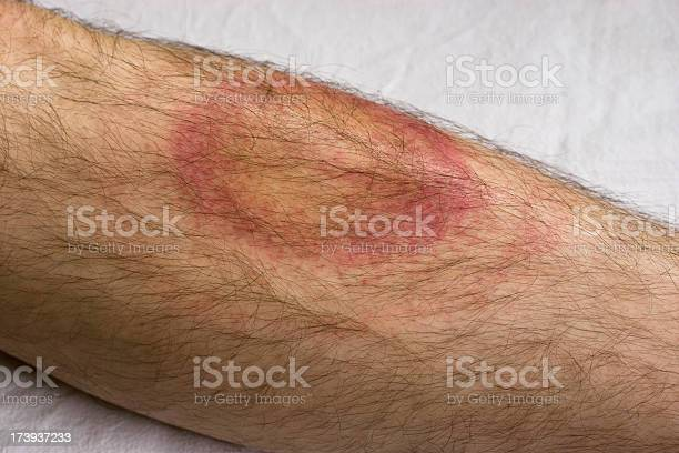 Lyme Disease Stock Photo - Download Image Now