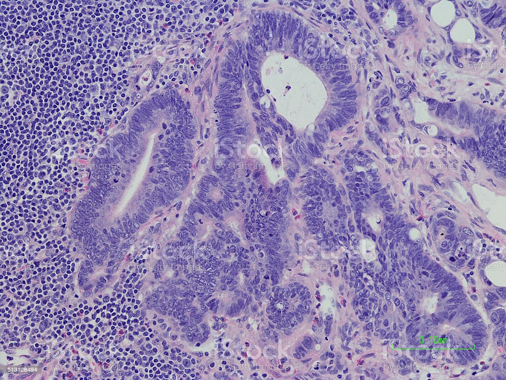 Lymph node with metastatic colonic adenocarcinoma H&E Stain stock photo