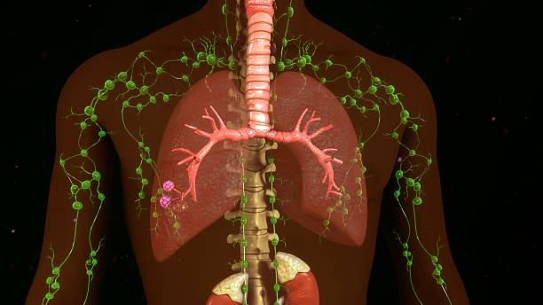 nós linfático - cancer da tireoide - fotografias e filmes do acervo