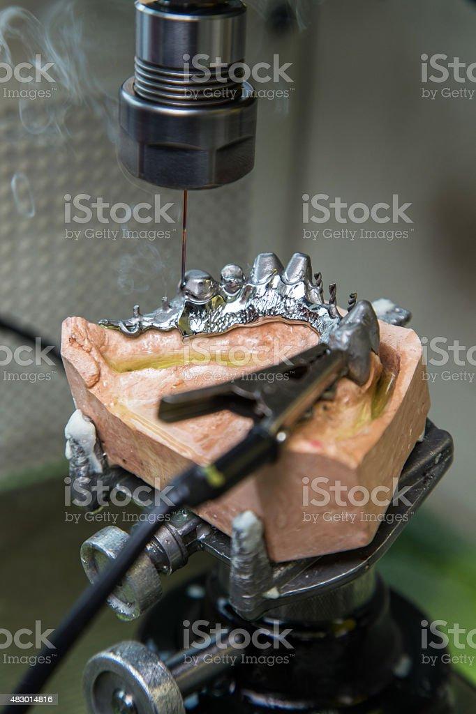 EDM machine for denture stock photo