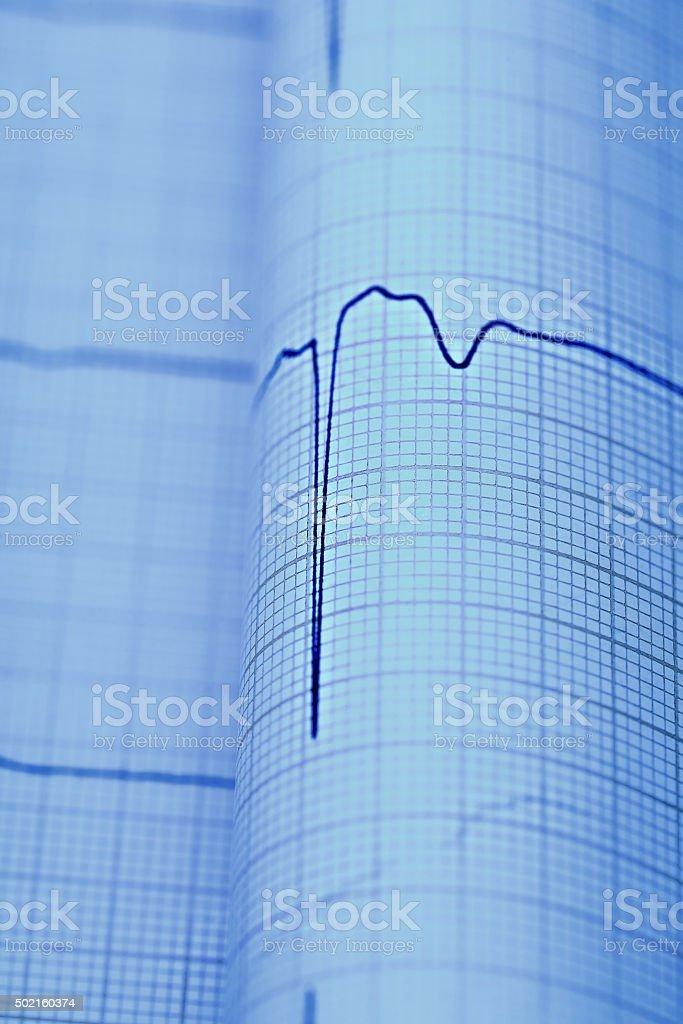 ECG macro as a medical diagnostic concepts stock photo