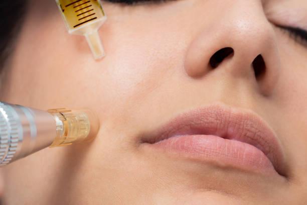 Macro detail of micro needle cosmetic treatment on female cheek. stock photo