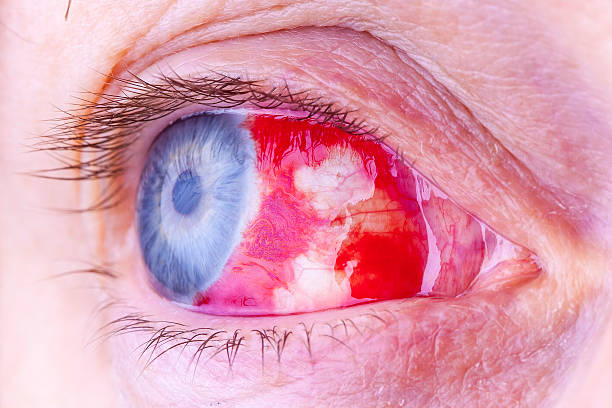 Macro image of a red bloodshot eye stock photo