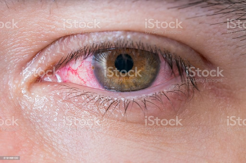 Macro of conjunctivitis red eye. stock photo