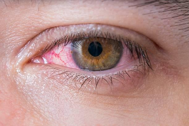 Macro of conjunctivitis red eye. stock photo