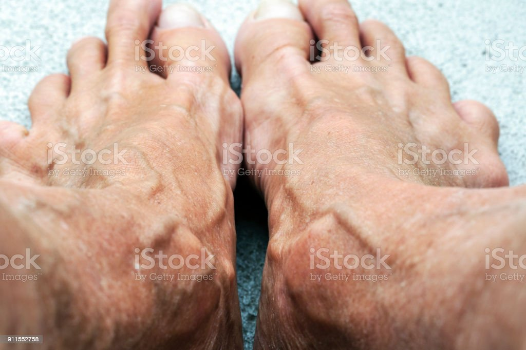 Makroaufnahme einer alten Frau die Füße, Hintergrund mit Textfreiraum – Foto