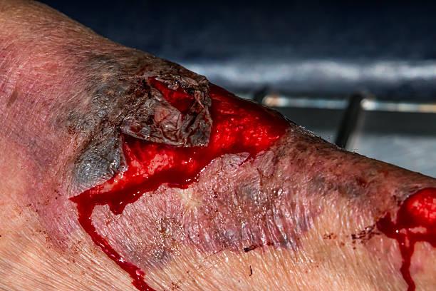 macro shot of a skin scratch stock photo