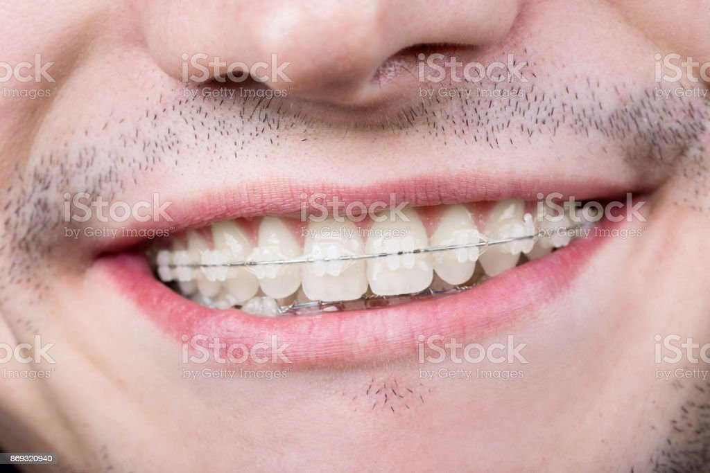 Tiro de macro de dientes blancos con tirantes. Sonriendo a paciente masculino con soportes de metal en el consultorio dental - foto de stock