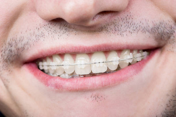 Macro shot of white teeth with braces. Smiling male patient with metal brackets at the dental office stock photo