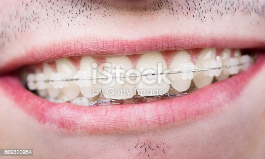 istock Macro shot of white teeth with braces. Smiling male patient with metal brackets at the dental office 869320954