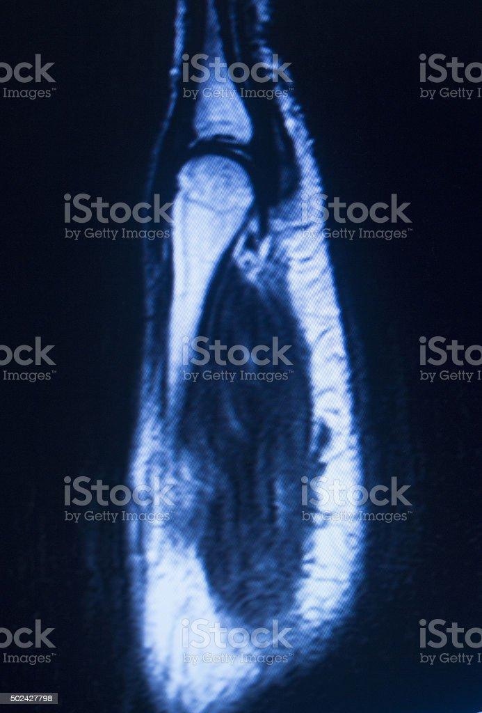Mri Magnetic Resonance Imaging Hand Carpal Scan Stock Photo More