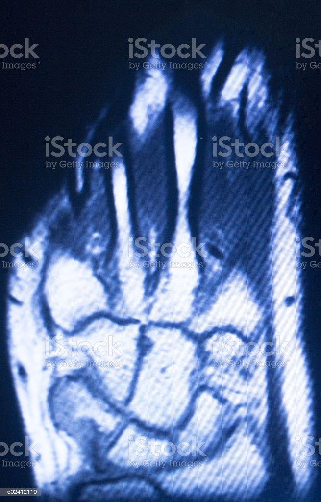 Mri Magnetic Resonance Imaging Hand Finger Scan Stock Photo & More ...