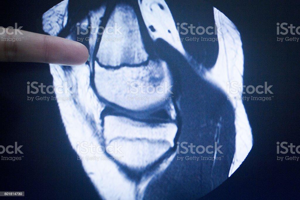 MRI magnetic resonance imaging medical scan stock photo