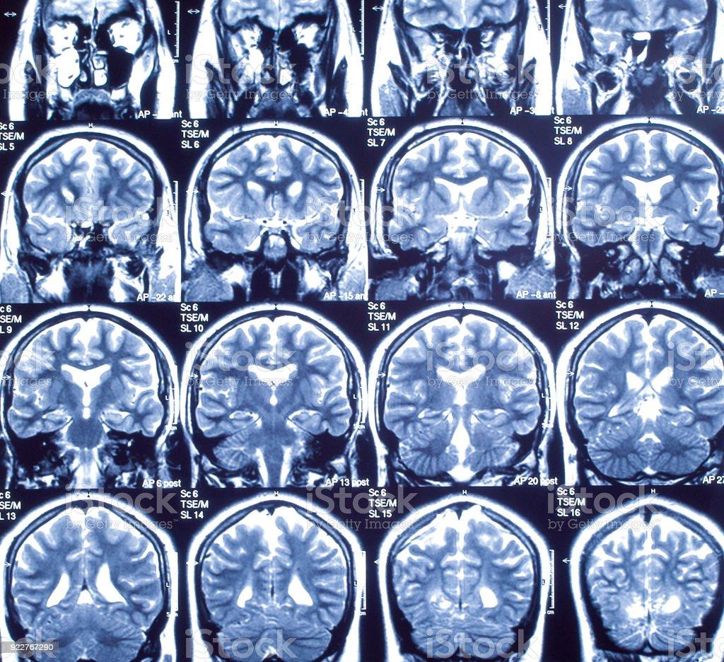 Magnetic resonance imaging, medicine concept, old image stock photo