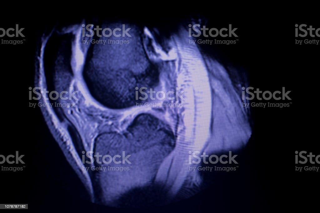 Magnetic Resonance Imaging Mri Knee Posterior Horn Medial