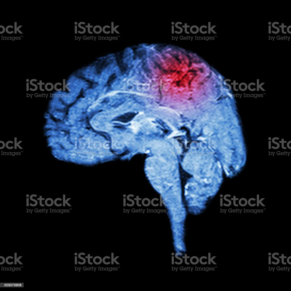 Magnetic Resonance Imaging ( MRI ) of brain and Stroke stock photo