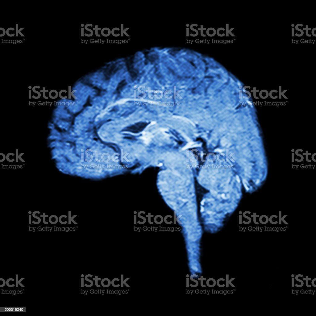 Magnetic Resonance Imaging ( MRI ) of brain stock photo