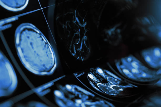 Magnetic resonance imaging of human brain with suspected cerebropathy stock photo