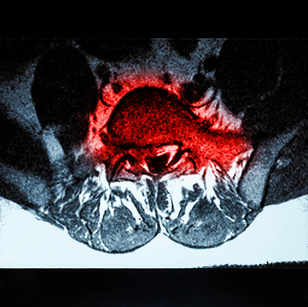 Magnetic resonance imaging (MRI) of lumbo-sacral spine stock photo