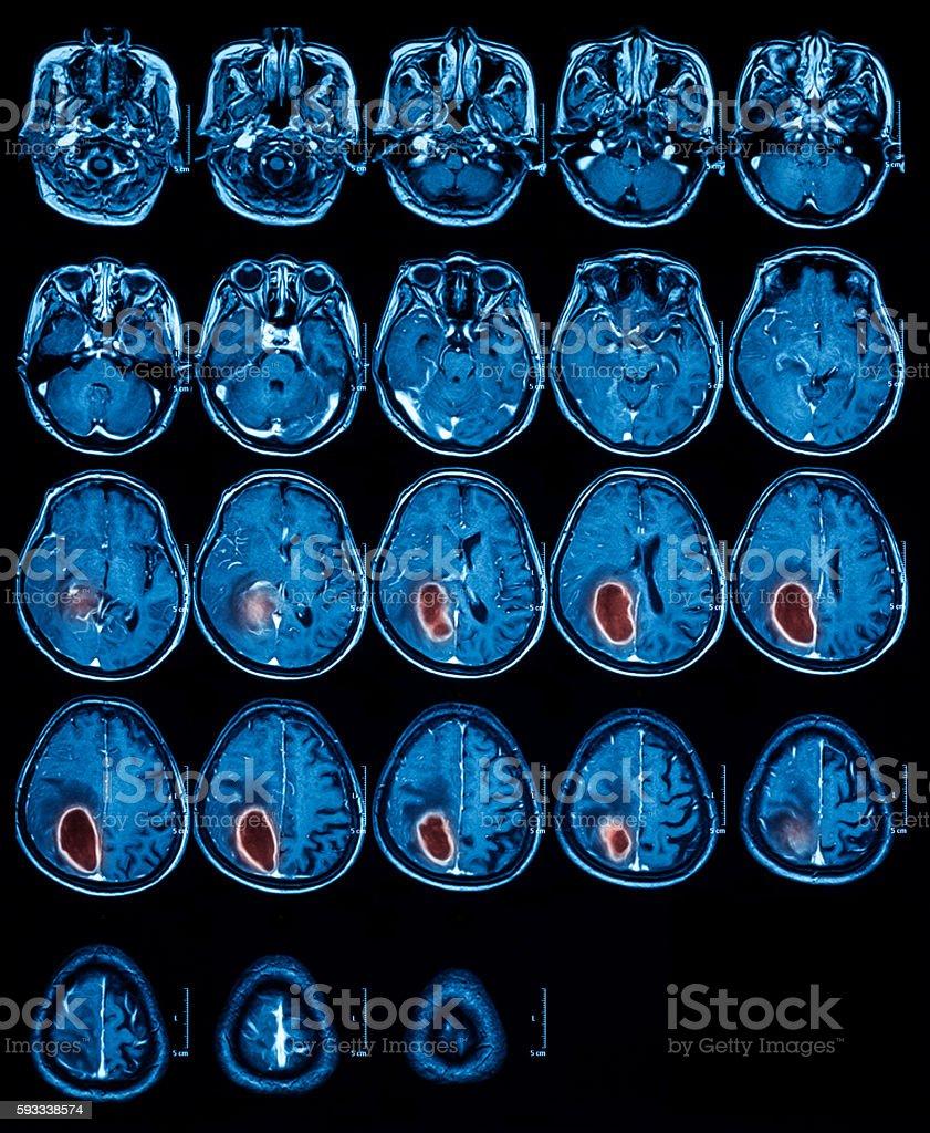Fotografía de Resonancia Magnética Del Cerebro El Tumor Cerebral y ...