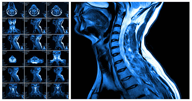 Magnetic resonance imaging of the cervical spine. Magnetic resonance imaging of the cervical spine. MRI vertebral discs in different views spine body part stock pictures, royalty-free photos & images
